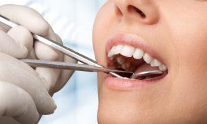 Untersuchung und Behandlung beim Zahnarzt